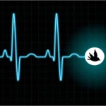 cardiogramă